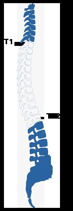 spine T1-T12