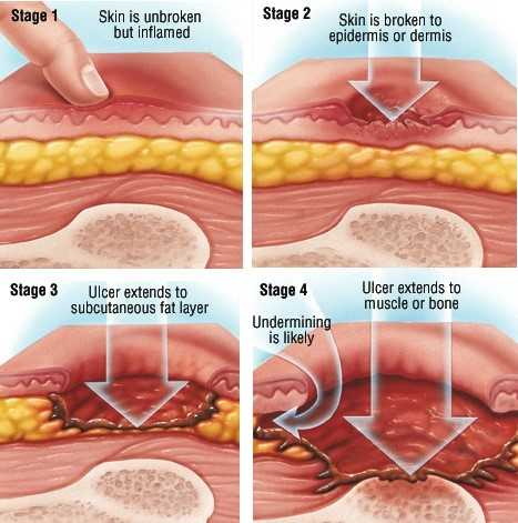 Signs And Symptoms Of Bedsores Stage By Stage Facing